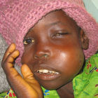 A Nigerian girl with Burkitt's lymphoma